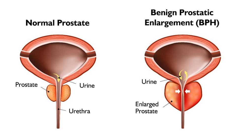 UROLIFT Prostate